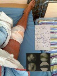 kolano po operacji